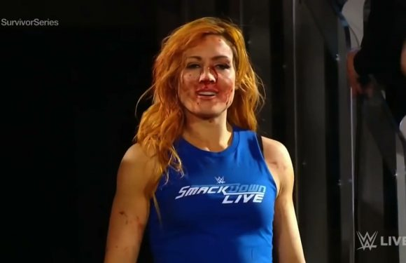 """""""Broken Face"""" And All, Becky Lynch Is Suddenly The Biggest Star In WWE"""