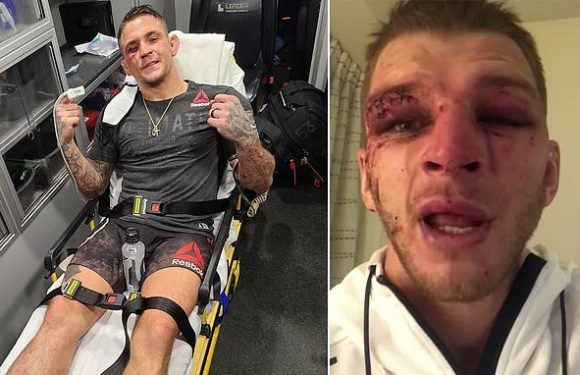 Dustin Poirier and Dan Hooker show off facial injuries after fight