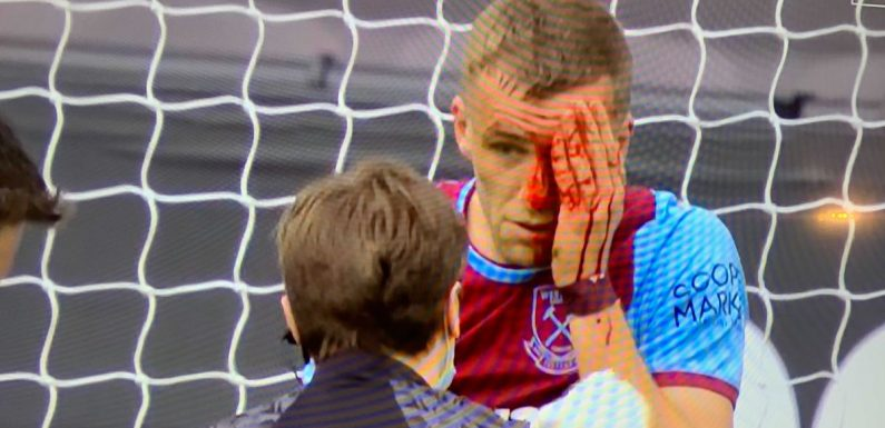 Tomas Soucek in horror head clash as bloody West Ham ace forced off for stitches