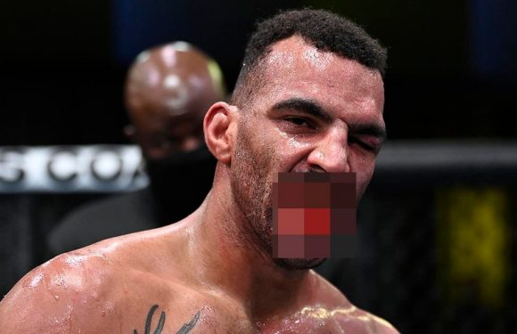 Graphic image of UFC star Devin Clarks smashed teeth emerge after fight